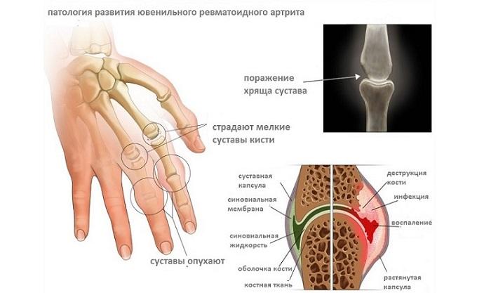ur-artrit