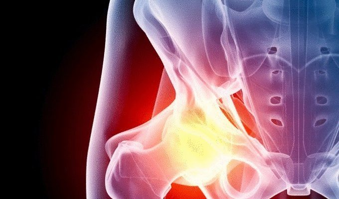 content_exercises_with_osteoarthritis_of_the_hip_joint__econet_ru