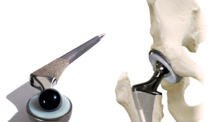 hip-arthroplasty