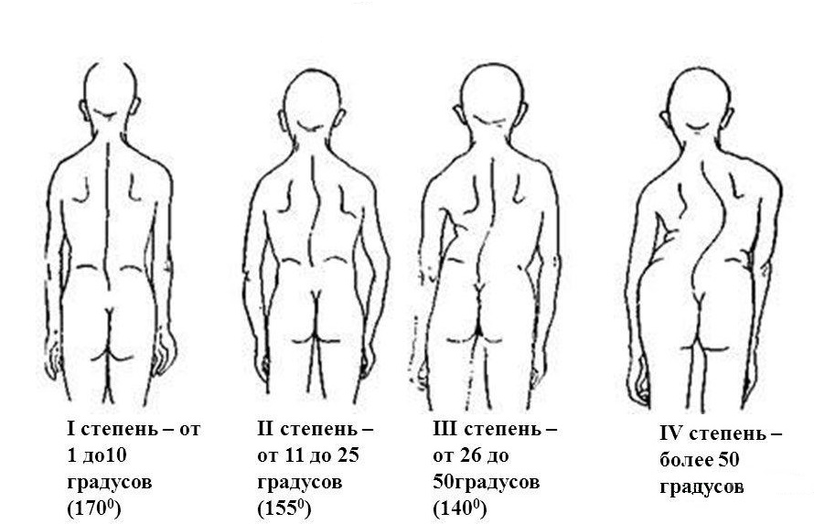 stepeni-1