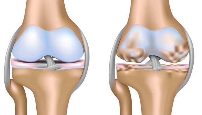 Чм отличается бурсит от артрита