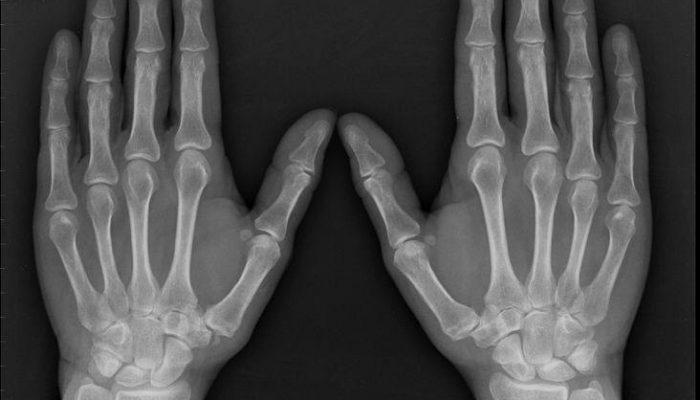 Что такое артроз и артрит