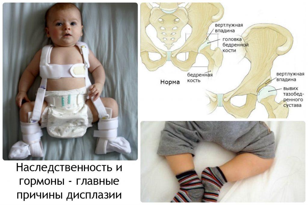 Дисплазія тазостегнових суглобів у новонародженого