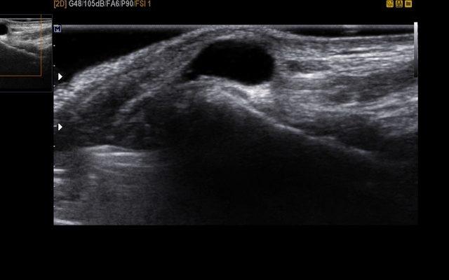 Гигрома: что это такое? Симптомы и лечение гигромы на запястье