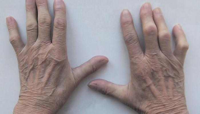 Revmatoidnyj-artrit1