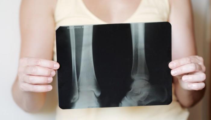 Растяжение ноги сколько болит thumbnail
