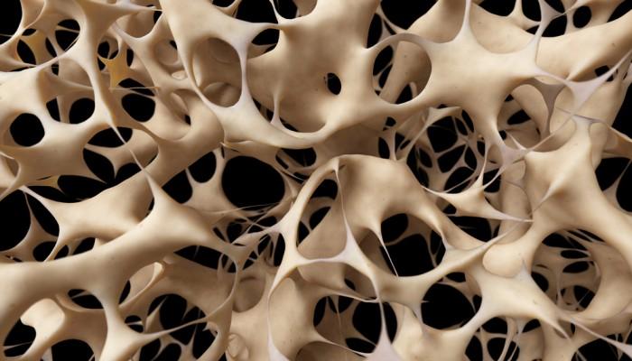 Изображение - Болезни костей и суставов ног 9b523b0c92185f39a0da77a82c51b46a-700x400