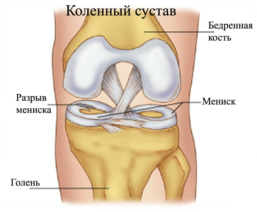 meniscus-tear_razryiv-meniska