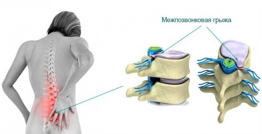 mezhpozvonkovaya-gryzha-poyasnichnogo-otdela-lechenie 1