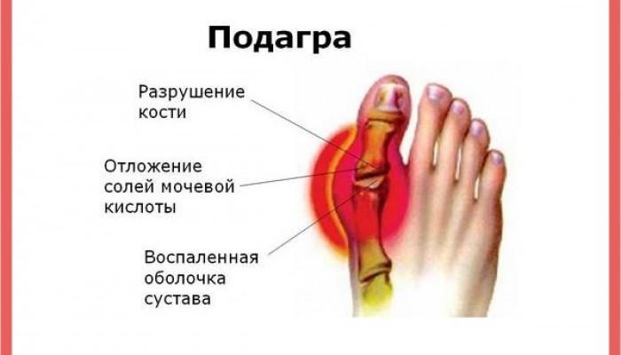 podagra-simptomy-i-lechenie