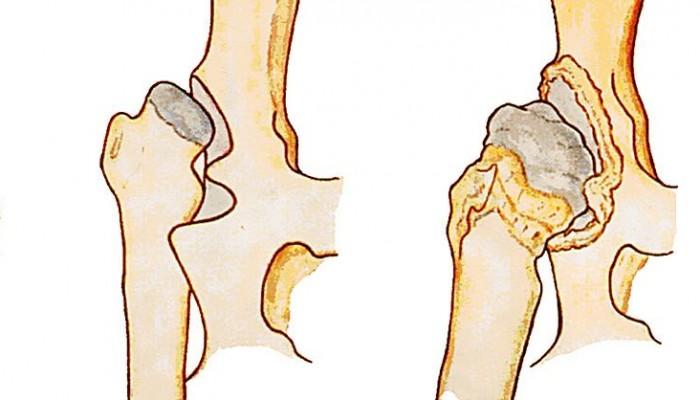 Изображение - Болезни костей и суставов ног vrozhdennye-poroki-razvitiya-skeleta-displaziya3-e1460654499171-700x400