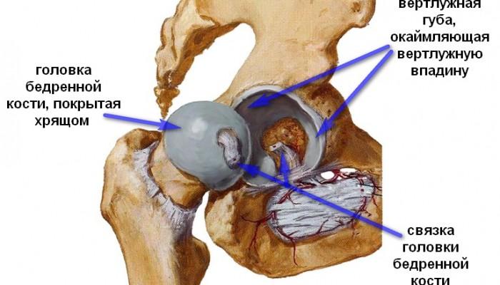 Изображение - Разрыв связки тазобедренного сустава лечение zabolevanija-tazobedrennogo-sustava-u-zhenshhin_2-700x400