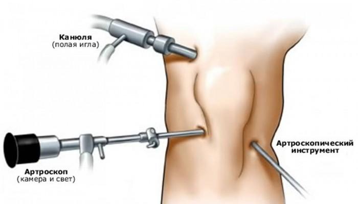Изображение - Обызвествление коленного сустава лечение risunok1_7-700x400