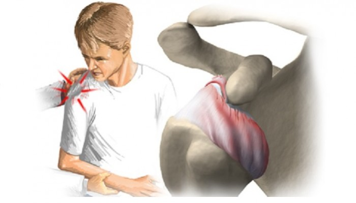 Dislocation_of_the_shoulder