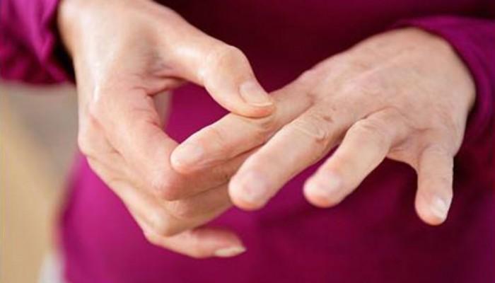 artroz-palcev