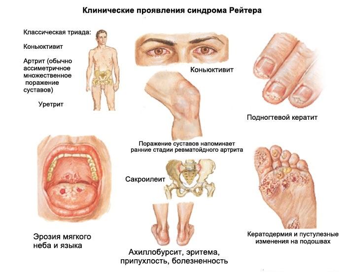 bolezn_rejtera_reaktivnyj_artrit