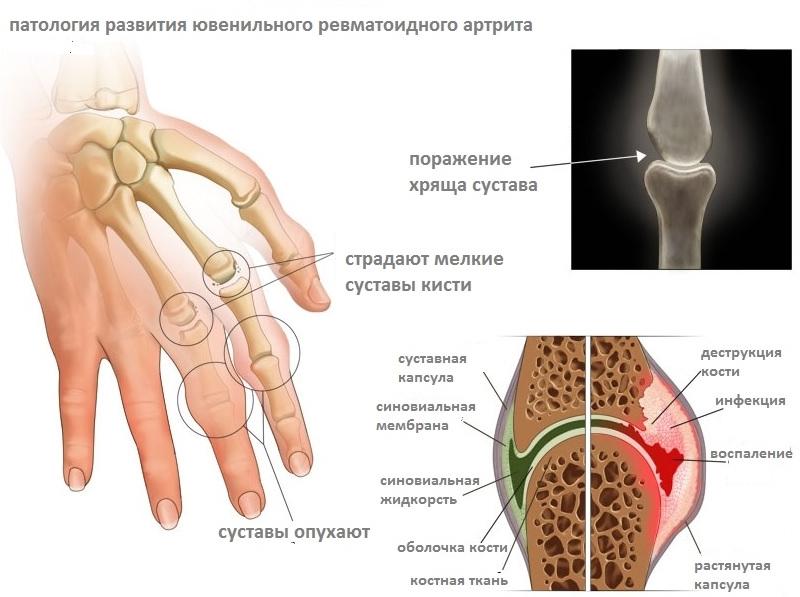 revmatoidnyj-artrit-3