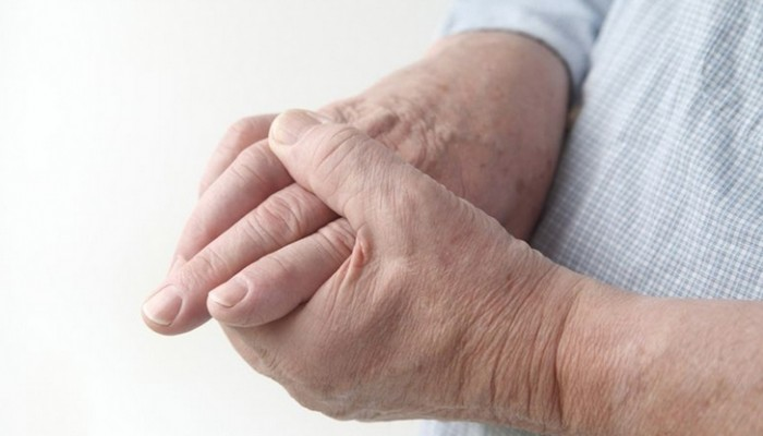 revmatoidnyj-artrit-palcev-ruk