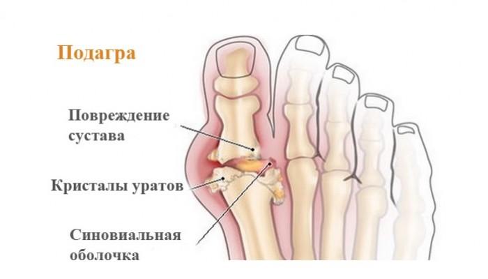simptomy-podagryi