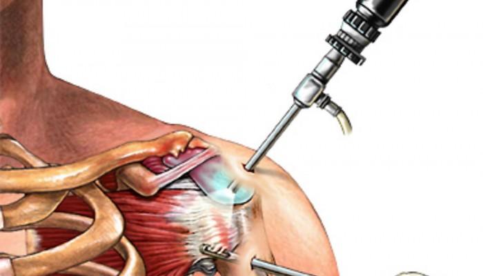 Подклювовидный бурсит плечевого сустава
