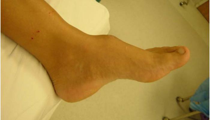 Изображение - Нарост на берцовой кости коленного сустава 418106-700x400