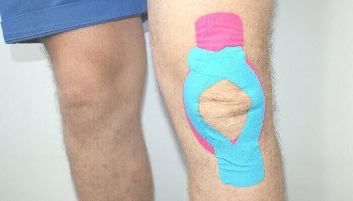 Изображение - Для суставов и связок спортивное пластырь kinezio_teip_koleno-700x400