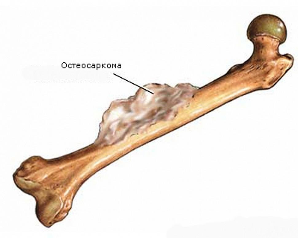 Изображение - Онкология суставов симптомы 825.970