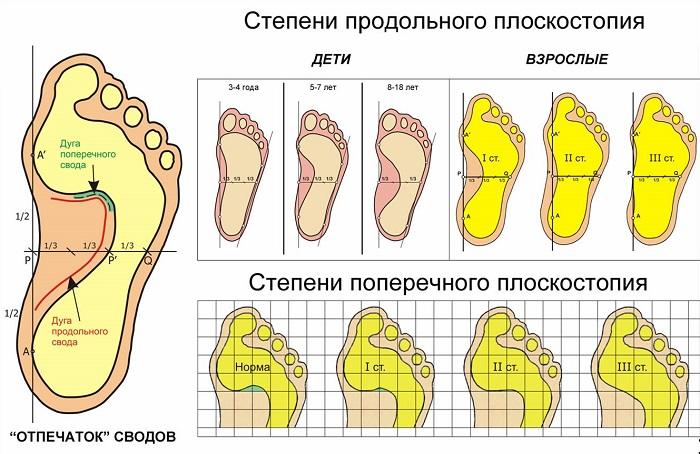 ris-2-poperechnoe-i-prodolnoe-ploskostopie