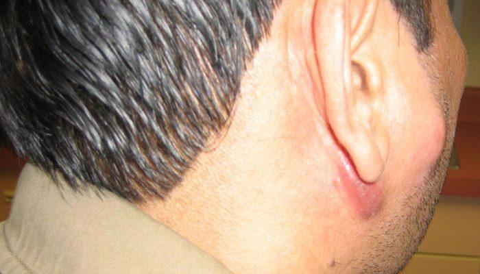 lymphadenitis-4