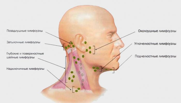 simptomy-vich-limfouzly