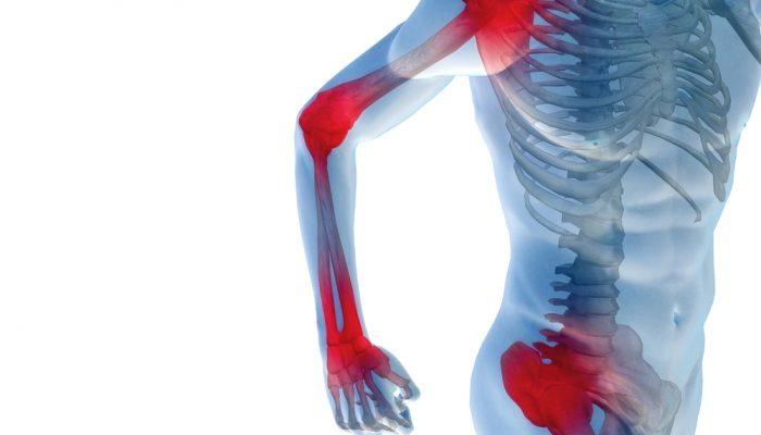 Изображение - Строение человека кости и суставы translit-4658-700x400