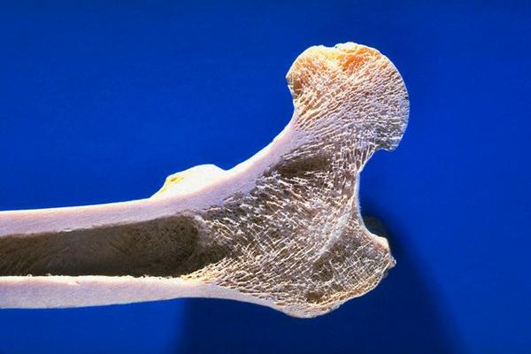 Рак подвздошной кости причины стадии диагностика и лечение