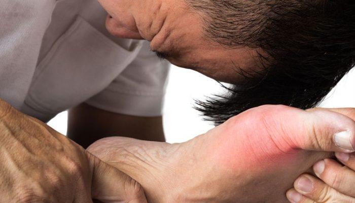 Диета при подагрическом артрите рекомендации ревматологов — Суставы