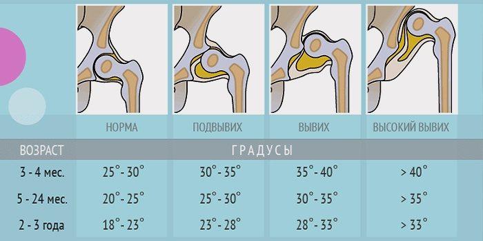 Изображение - Углы тазобедренных суставов в 3 месяца ut-4-700x350