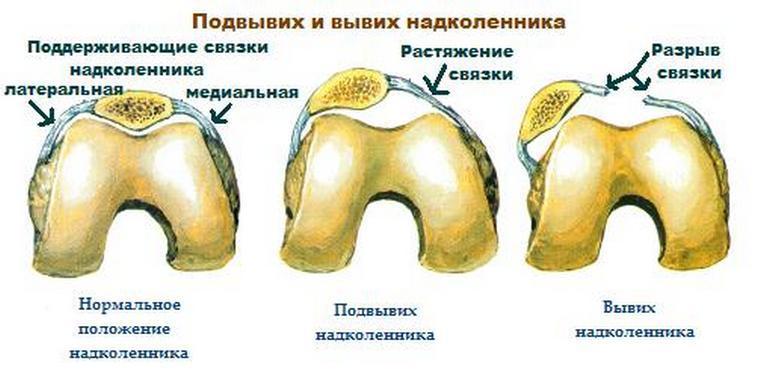 Изображение - Вывих коленного сустава операция rastyazhenie-kolennogo-sustava